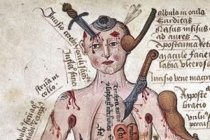 Medicine through the ages quiz Quiz: Medicine through the Ages | Get History