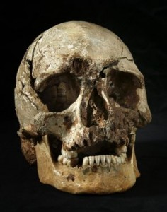 The skull of Cheddar Man, with the clearly visible hole above the eye socket.